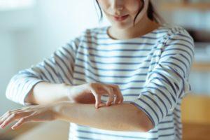 アトピー性皮膚炎や抜け毛に亜鉛は効くの?